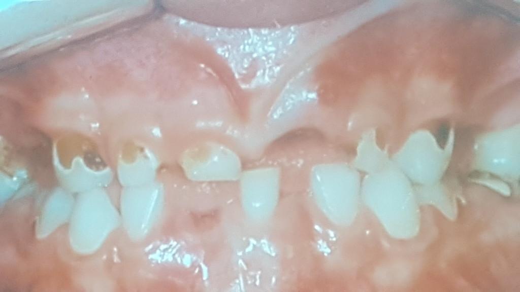 Imersão em Odontopediatria 2017