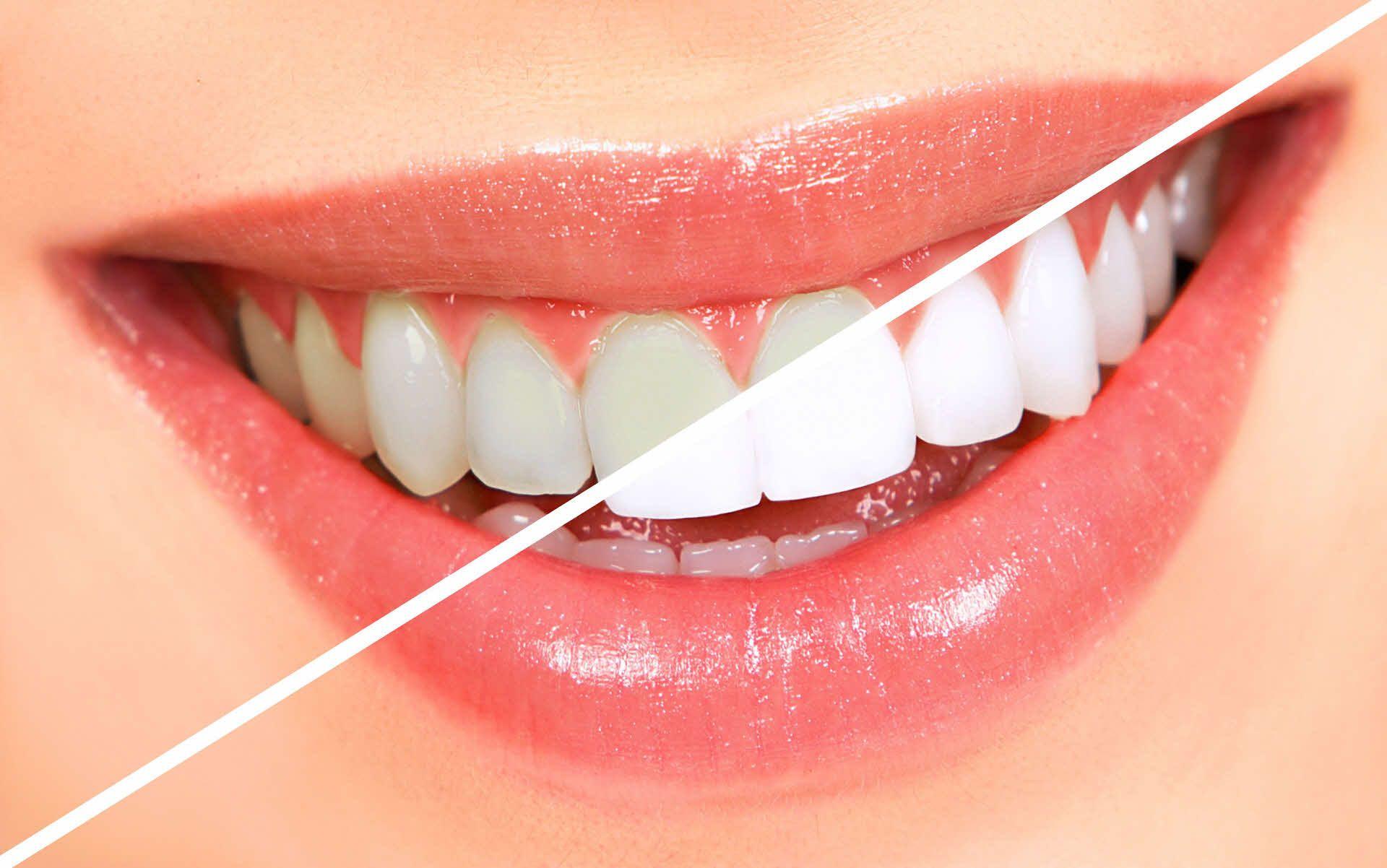 Clareamento Dental - Sorriso bonito e saudável